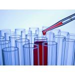 Visita medica presso l'uso di steroidi